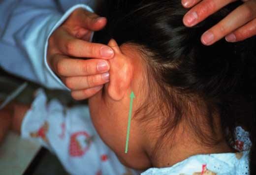 耳 の 後ろ 腫れ